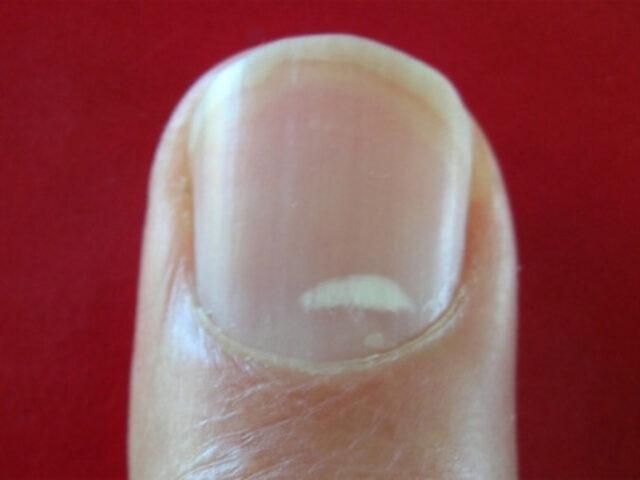 Пятна на ногтях описание