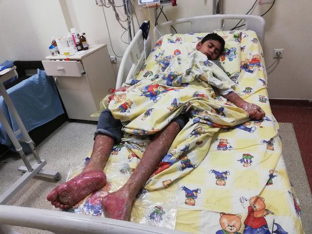 'TEN' hastası oğlunun tedavi edilmesini istiyor