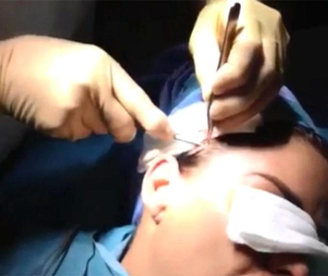 unlu-yildiz-yuz-gerdirme-ameliyatindan-video-713410_2306_9_b