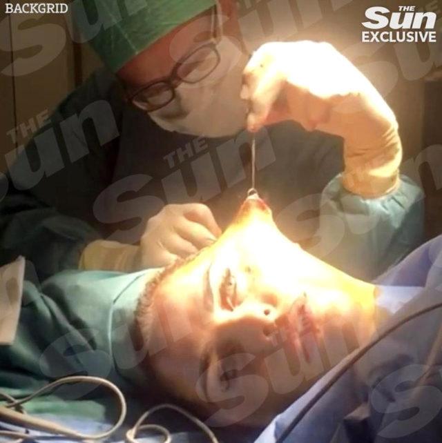 unlu-yildiz-yuz-gerdirme-ameliyatindan-video-713410_2810_7_b