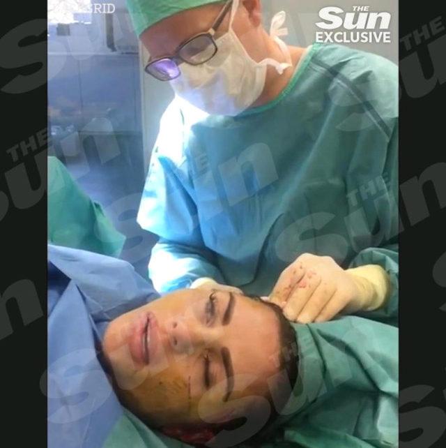 unlu-yildiz-yuz-gerdirme-ameliyatindan-video-713410_4639_6_b