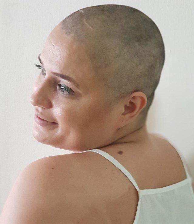 Balayında meme kanseri tanısı koyulunca embriyoları donduruldu