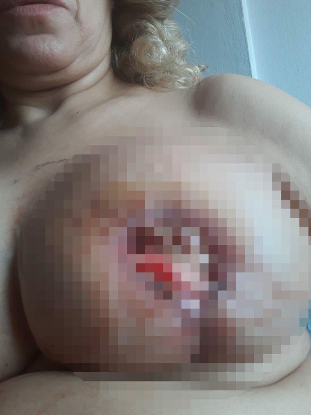 ayni-doktora-meme-kucultme-ameliyati-yaptiran-kadinlar-kabusu-yasadi_7713_dhaphoto1