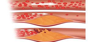 Kolesterolünüzü Düşürmenize Yardımcı Olacak 6 Süper Yiyecek