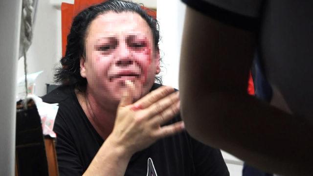 Eskort sitesinden tanıştığı kişiyi, transseksüel olduğunu öğrenince dövdü