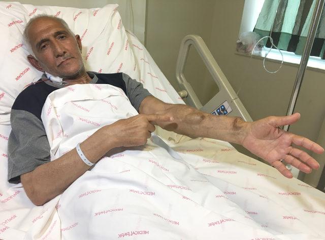 Adana'da 18 yıldır beklediği böbreğe, Antalya'da 49 günde kavuştu
