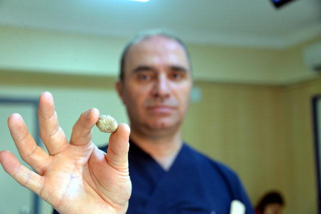 Tükürük bezinden 3 santimetre çapında taş çıktı