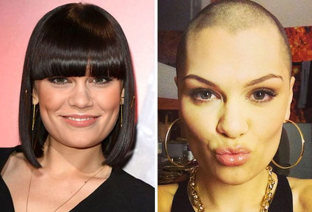 before-after-bald-shaved-head-celebrities-4-5d9dcab1209ee__700