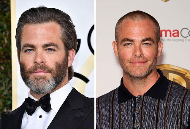 before-after-bald-shaved-head-celebrities-13-5d9de6dea6859__700