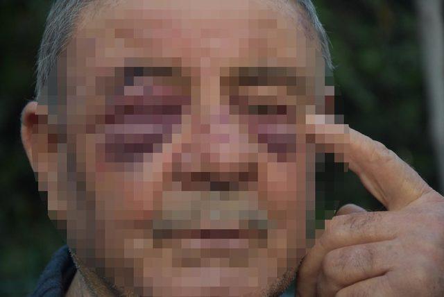Yaşlı apartman yöneticisine saldırı