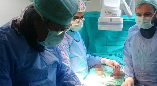 Amasya'da ilk kez endovasküler anevrizma onarımı ameliyatı yapıldı