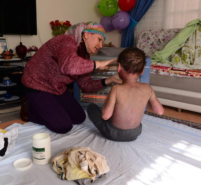 Hiç durmadan kaşınan çocuğun feryadı: Ölmek istiyorum anne
