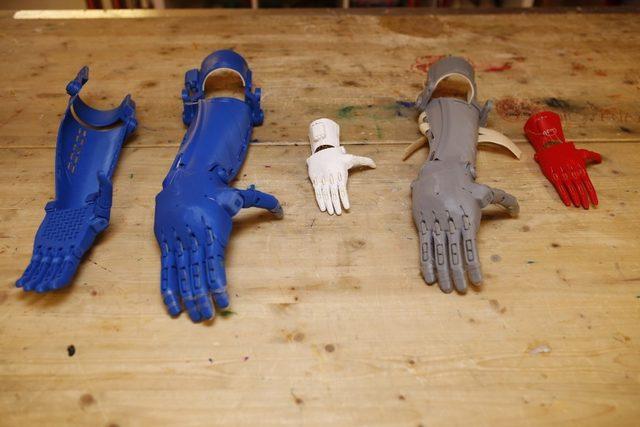 İş adamları el ve parmak kaybı yaşayan çocuklar için birleşti