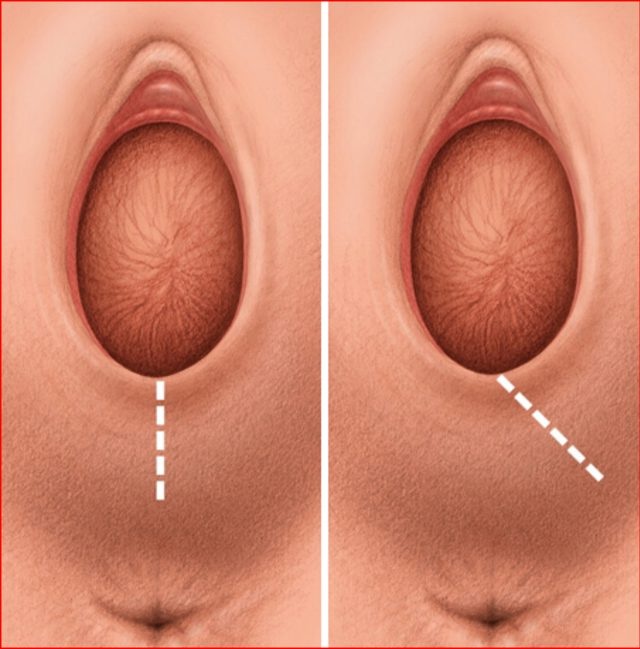 The Diagnosis And Surgical Repair Of Vesicovaginal Fistula