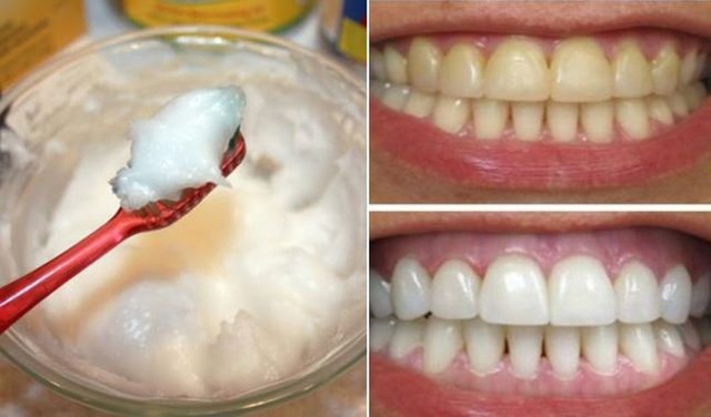 Home-Remedy-for-Super-Fast-Teeth-Whitening-with-Coconut-Oil-and-Baking-Soda