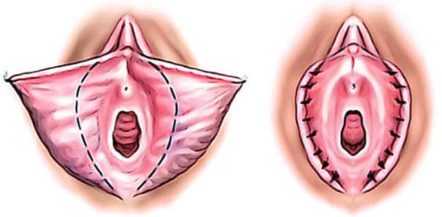 Vajina Estetiği Ile Daha özgüvenli Başlangıçlar