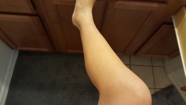 Neden bacaklarım acıyor