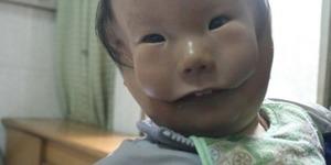 Dünyada ilk kez görünen hastalık! Çift yüzle dünyaya geldi