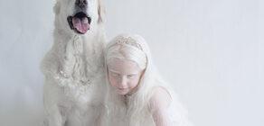 15 fotoğrafta Albinoların eşsiz güzelliği