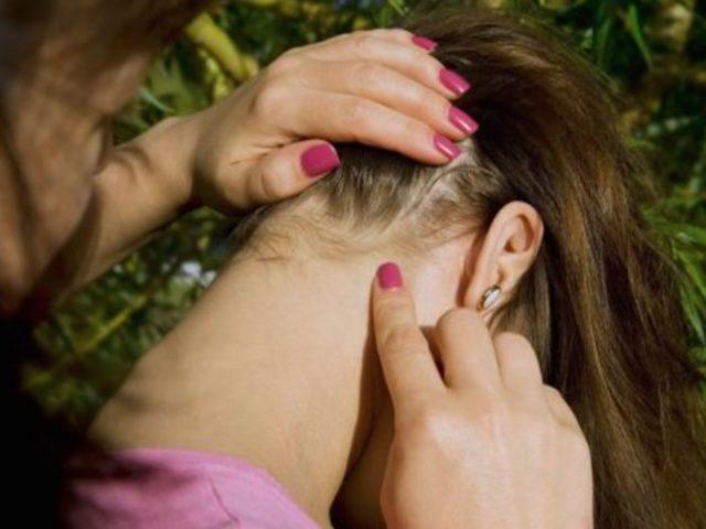 Boynunuzu Muayene Ederek Vücudunuzda Parazit Olup Olmadığını Anlayabilirsiniz