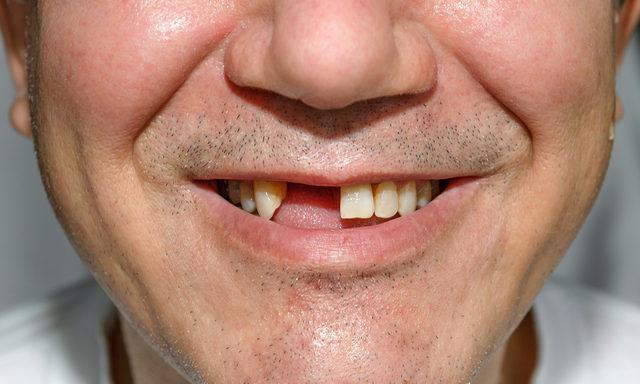 Diş dökmek